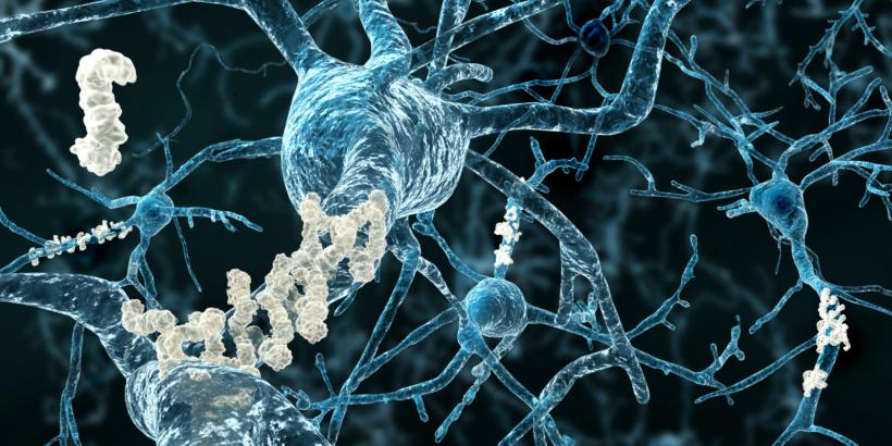 Neues Medikament gegen Alzheimer in den USA zugelassen